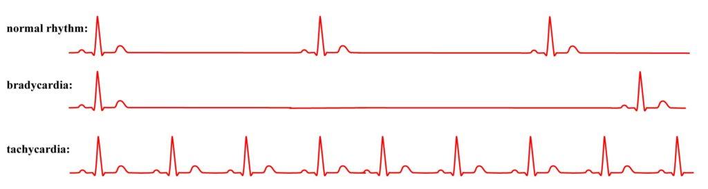 Danger-of-An-Irregular-Heartbeat-types